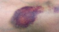 194x105_Bruises_0